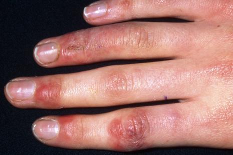 Covid-19 : les dermatologues appellent à la vigilance sur les acrosyndromes et érythèmes faciaux