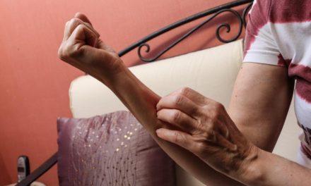 Coronavirus : pseudo-engelures, urticaire, rougeurs persistantes… Les dermatologues alertent sur des signes cutanés du Covid-19