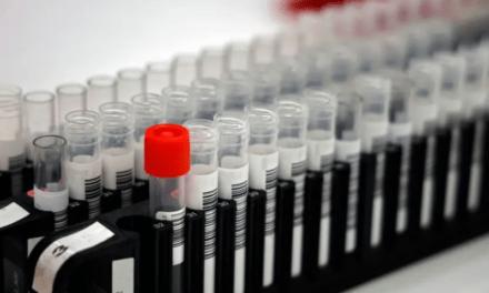 #Coronavirus : Patients positifs au #Covid-19 après guérison ? Ce serait lié au processus de rétablissement