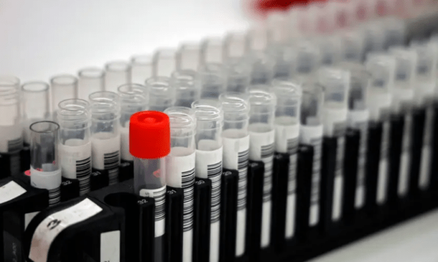 #Coronavirus : Patients positifs au Covid-19 après guérison ? Ce serait lié au processus de rétablissement